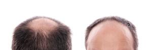 Transplante de cabelo em Paris